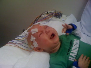 EEG at 5 months old
